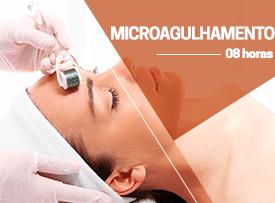 Curso prático de microagulhamento