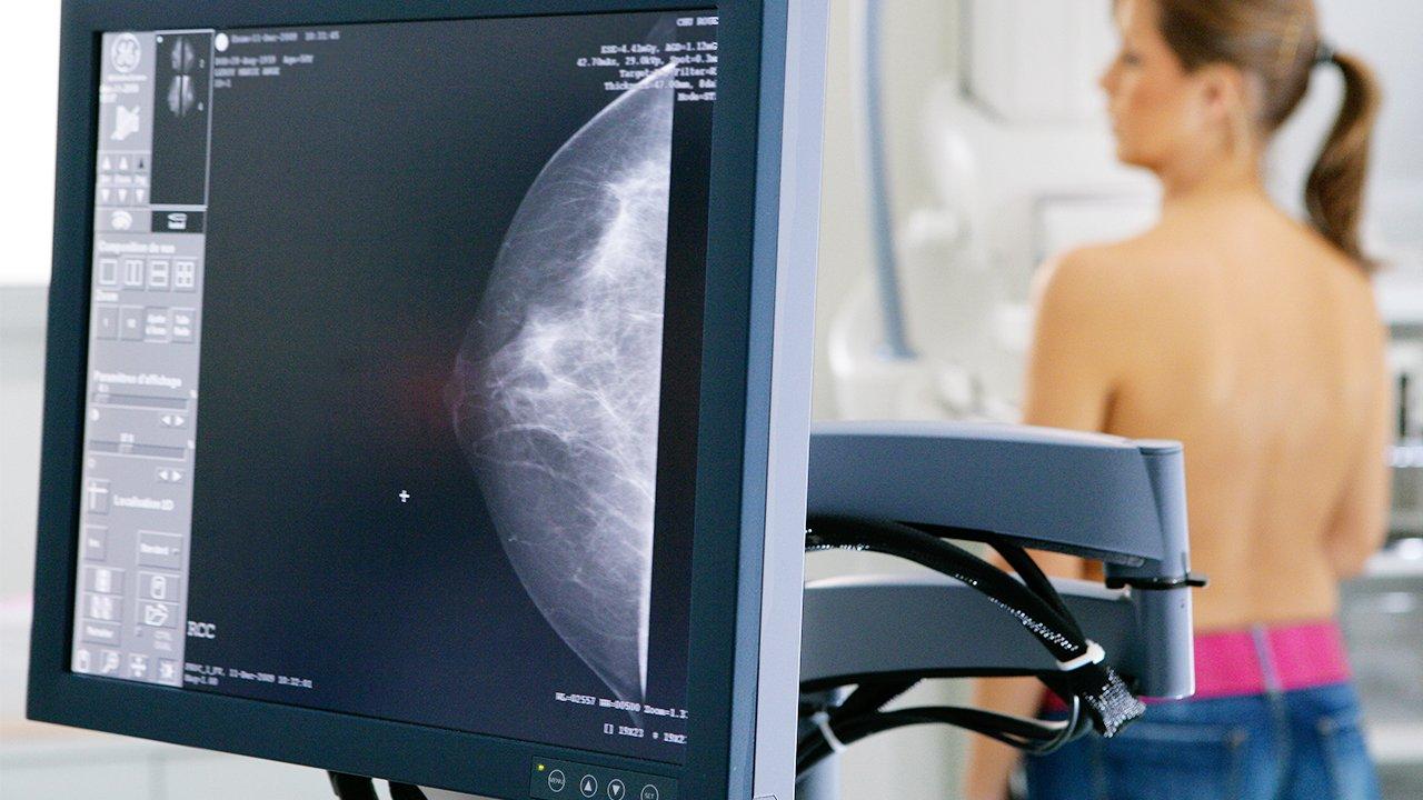 curso de especializacao tecnico em mamografia