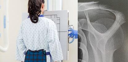 raio-x-pos-graducao-radiodiagnostico-por-imagem-convencional-famesp