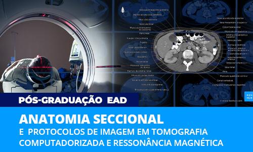 pos-graduacao-ead-anatomia-seccional-protocolos-tomografia-ressonancia-famesp